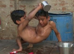 Conjoined Twins Refuse To Be Separated